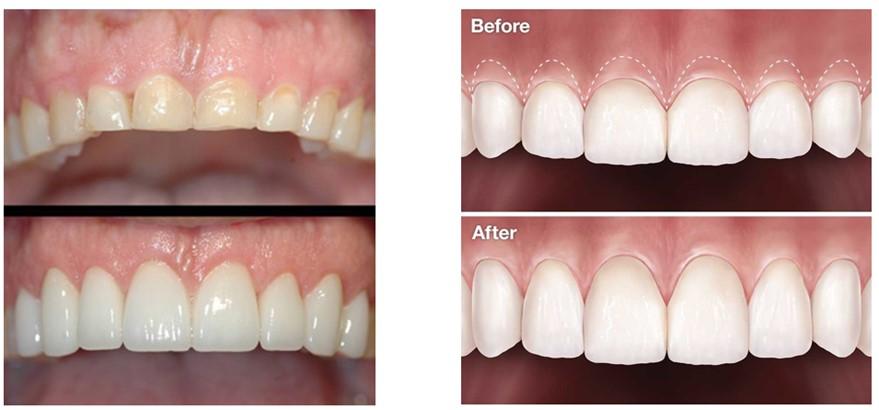 مراقبت پس از جراحی لثه (افزایش طول تاج دندان)