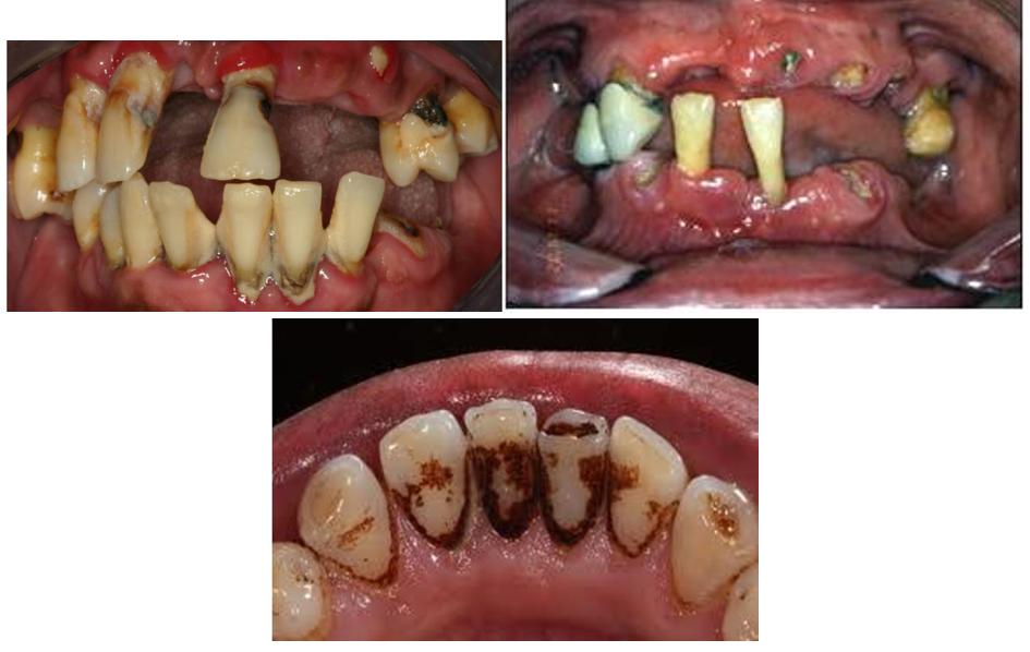 کشیدن سیگار، بیماری لثه، و از دست رفتن دندان
