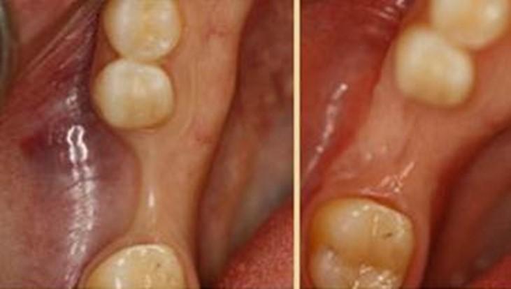 پیوند استخوان پیش از کاشت ایمپلنت دندانی