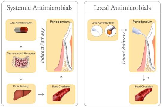 درمان بیماری لثه با آنتی بیوتیک