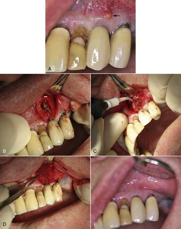 پیشگیری از شکست ایمپلنت دندانی با لیزر
