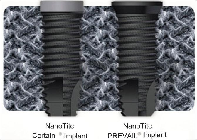 فناوری نانو در موفقیت ایمپلنت های دندانی