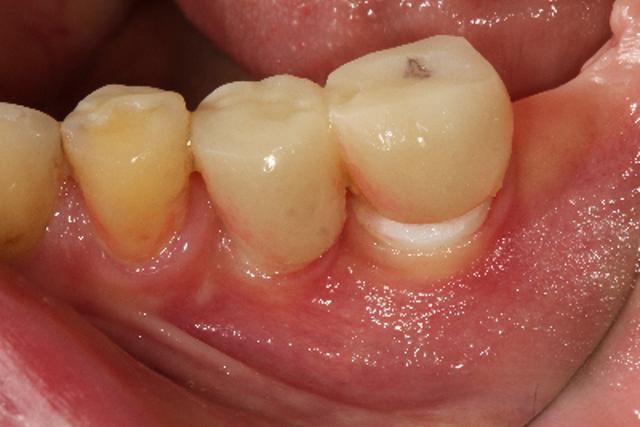 درد بعد از ایمپلنت دندانی