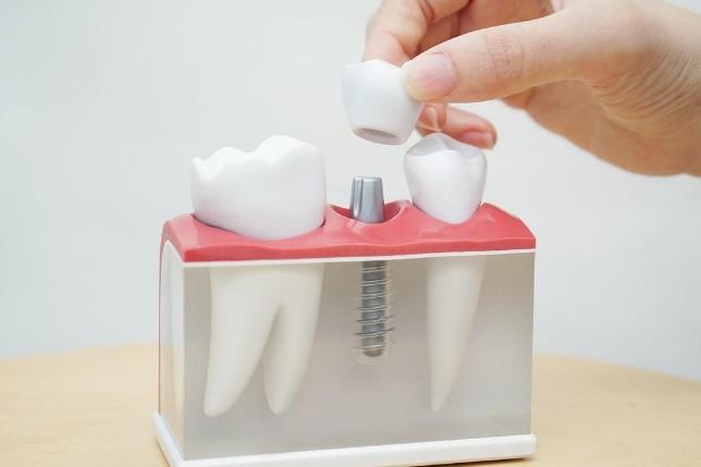 ایمپلنت های دندانی برای نوجوانان