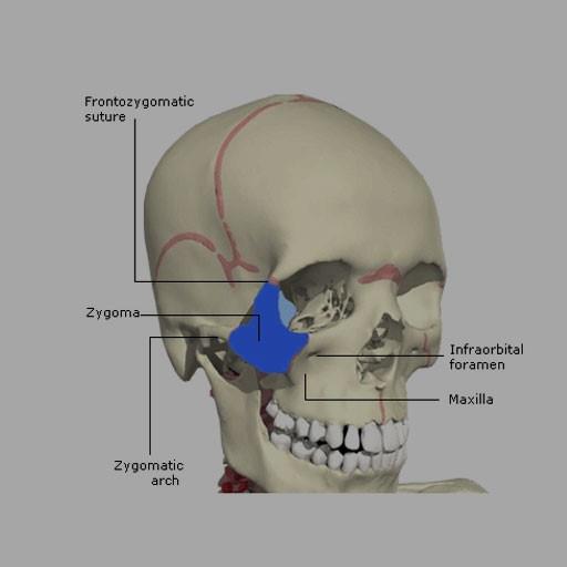 ایمپلنت های دندانی زیگوماتیک
