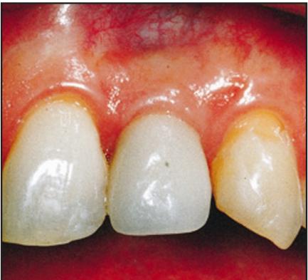 ایمپلنت دندانی و دندان طبیعی
