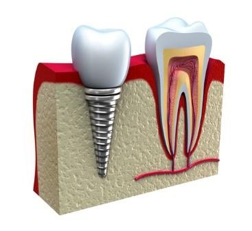 ایمپلنت های دندانی All-on-4، All-on-6 و All-on-8