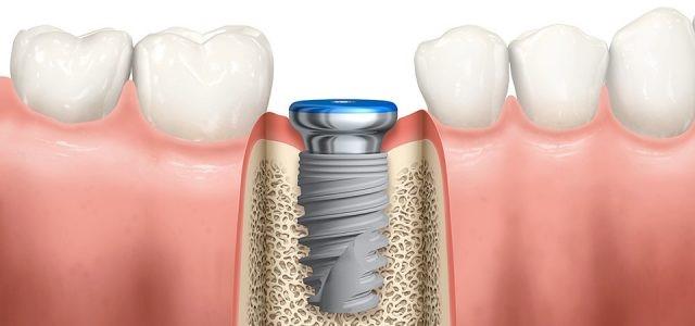زمان کاشت ایمپلنت پس از کشیدن دندان