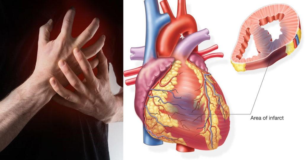 تاثیر بیماریها بر کاشت ایمپلنت