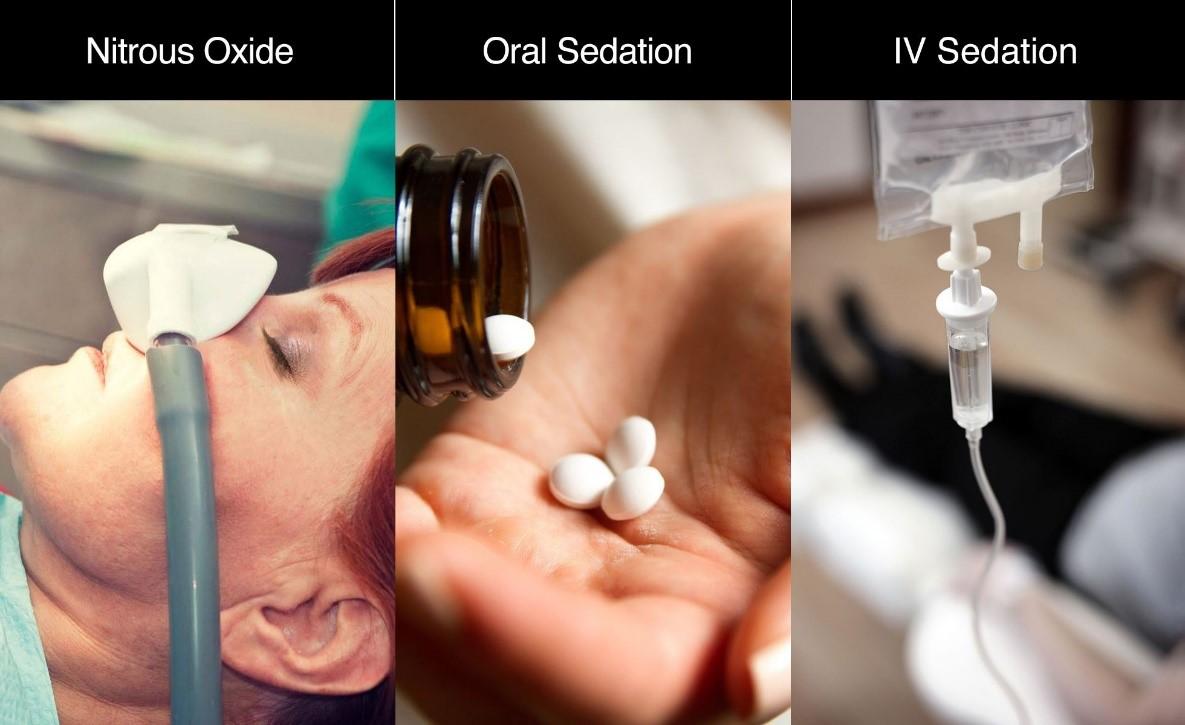 انواع بی حسی یا بیهوشی در جراحی های دهان