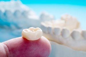 شل شدن روکش دندان