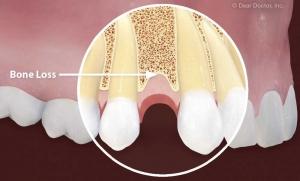 کاشت ایمپلنت دندانی پس از بیماری لثه
