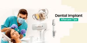 ورزش بعد از ایمپلنت دندان