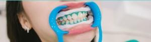 بلیچینگ و سفید کردن دندان ها