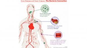 سلامت دندان و سلامت قلب