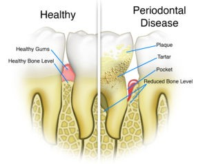 پیشگیری پوسیدگی دندان نخ دندان کشیدن