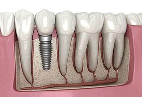طول عمر یا دوام ایمپلنت های دندانی