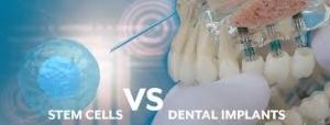 کاشت ایمپلنت های دندانی با سلول های بنیادی