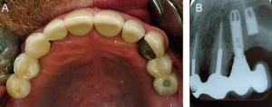 دندان قروچه و ایمپلنت