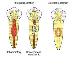 تحلیل ریشه دندان