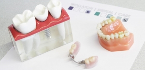 دنچر یا دندان یا پروتز مصنوعی
