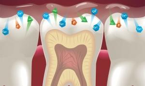فلوراید و سلامت دندان