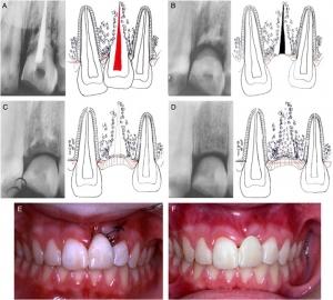 دندان انکیلوز شده یا جوش خورده به فک